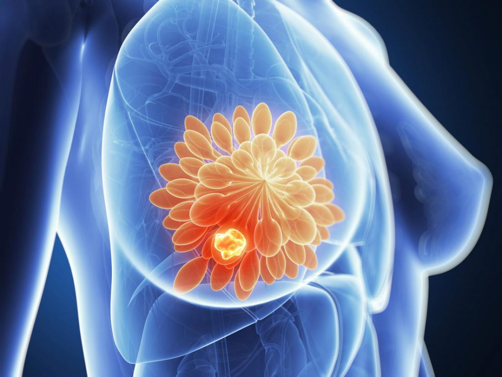 breast-cancer-tumor-illustration