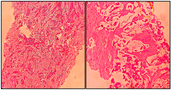 Invasive Ductal Carcinoma on Trucut Biopsy